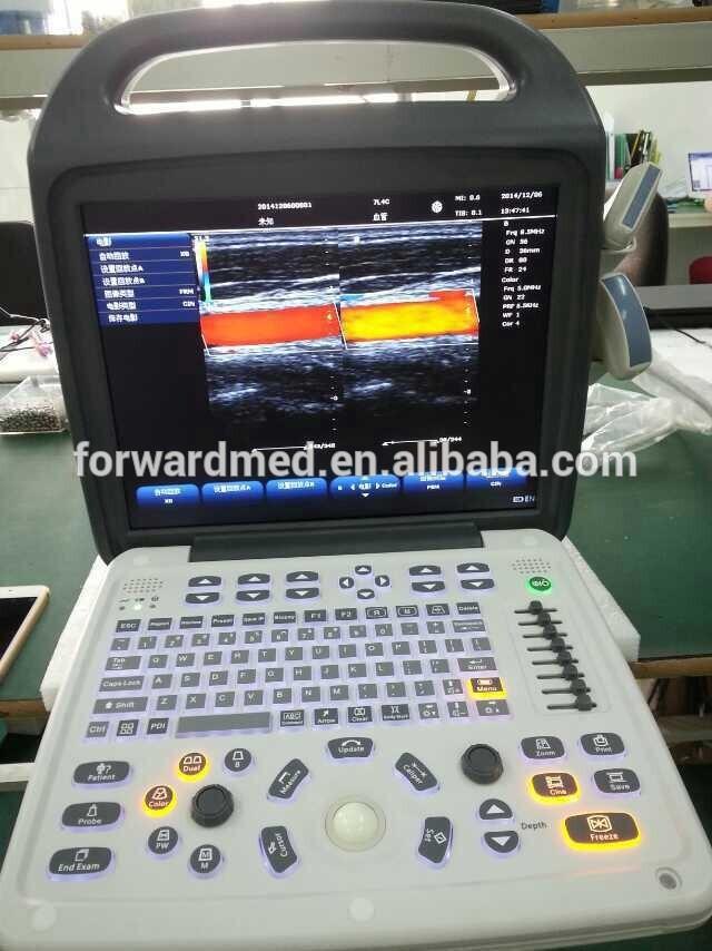 ポータブル血管超音波機器の価格・カラードップラーシステム-色のドップラー超音波装置問屋・仕入れ・卸・卸売り